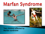 Marfan Syndrome - Genetic Disorders
